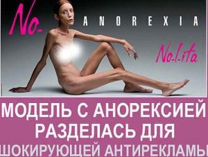 знаменитый билборд Нет анорексии