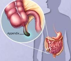 Тянет в области аппендикса